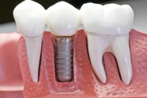cirugia oral