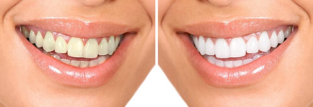 Tratamiento de Blanqueamiento Dental Combinado: ¿en qué consiste?