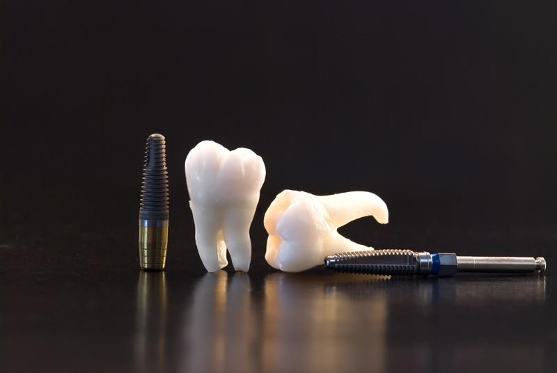 Implantes dentales en León: recupera tu sonrisa con total garantía
